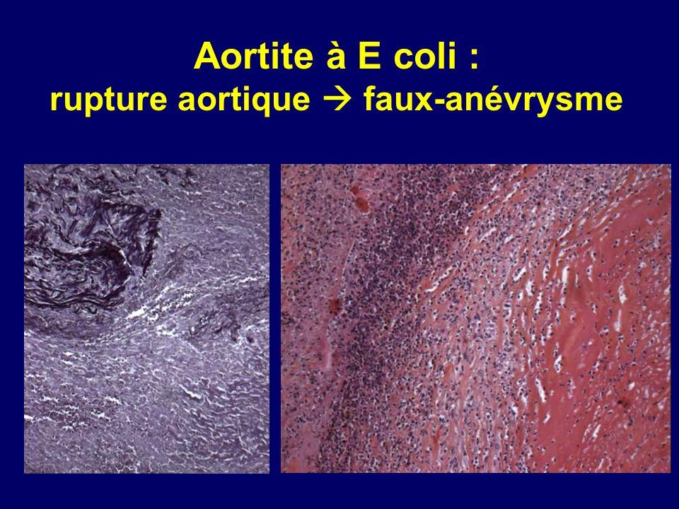 Aortite à E coli : rupture aortique faux-anévrysme