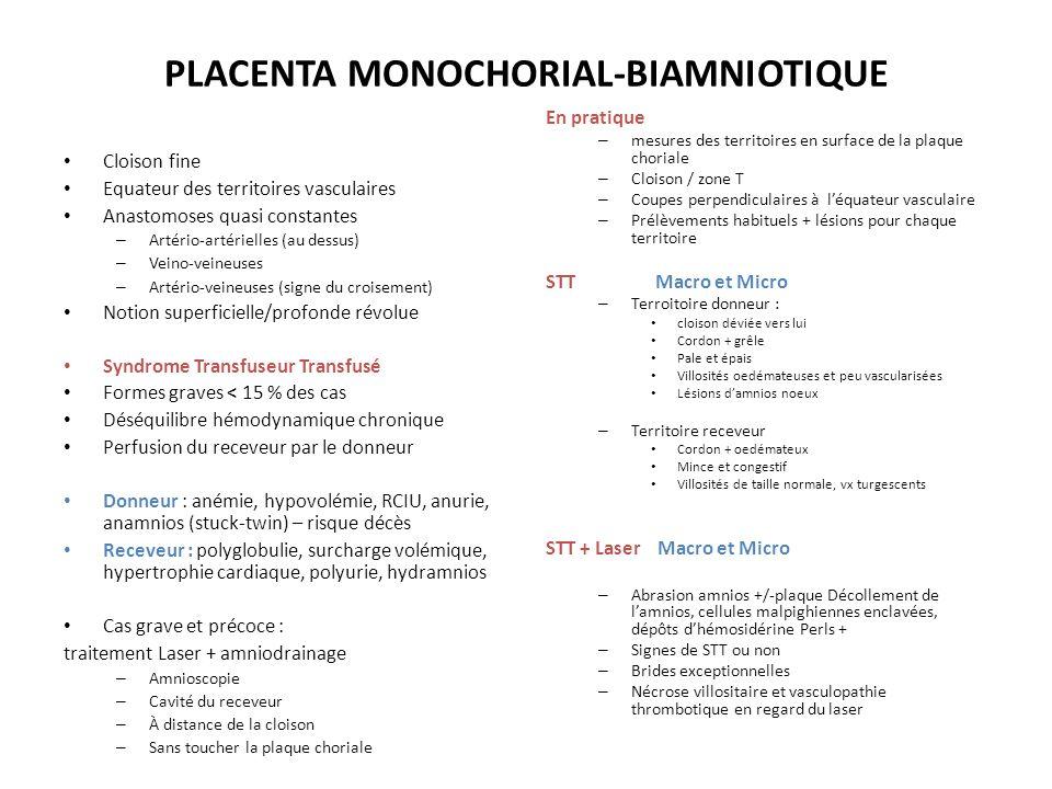 PLACENTA MONOCHORIAL-BIAMNIOTIQUE Cloison fine Equateur des territoires vasculaires Anastomoses quasi constantes – Artério-artérielles (au dessus) – V