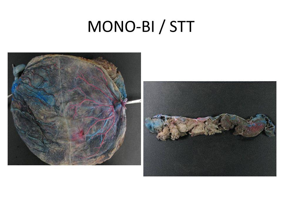 MONO-BI / STT