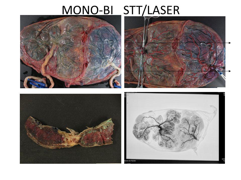 MONO-BI STT/LASER
