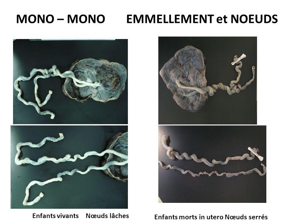 MONO – MONO EMMELLEMENT et NOEUDS Enfants vivants Nœuds lâches Enfants morts in utero Nœuds serrés