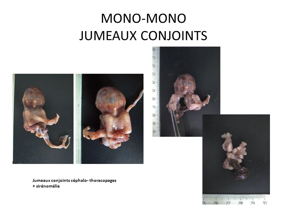MONO-MONO JUMEAUX CONJOINTS Jumeaux conjoints céphalo- thoracopages + sirénomélie