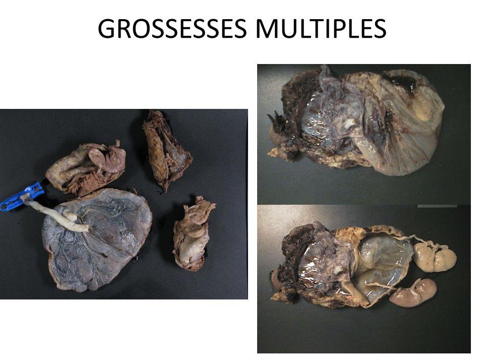 GROSSESSES MULTIPLES oo