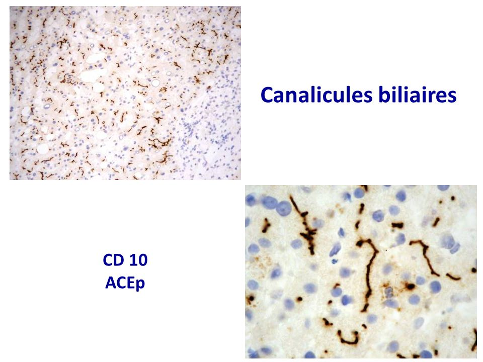 Canalicules biliaires CD 10 ACEp