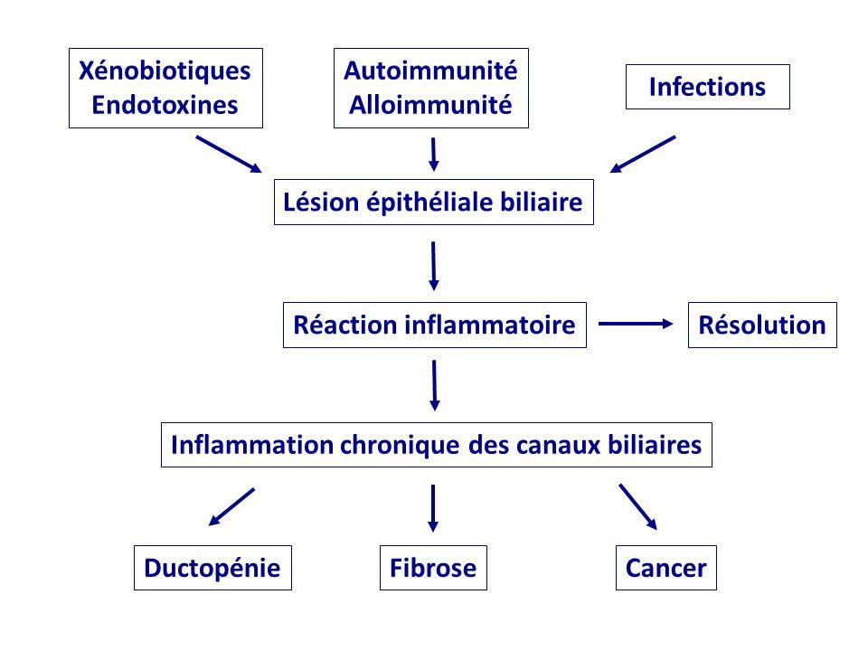 Lésion épithéliale biliaire Réaction inflammatoire Inflammation chronique des canaux biliaires Résolution DuctopénieFibroseCancer Xénobiotiques Endoto