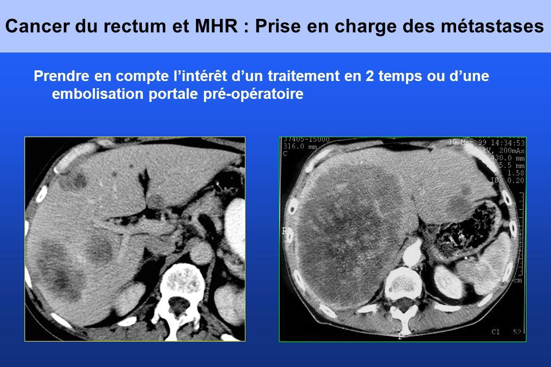 Cancer du rectum et MHR : Prise en charge des métastases Prendre en compte lintérêt dun traitement en 2 temps ou dune embolisation portale pré-opérato