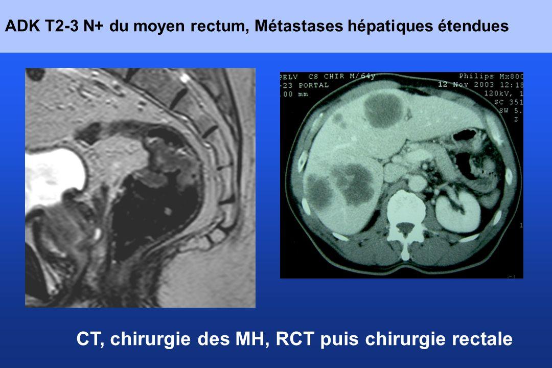 ADK T2-3 N+ du moyen rectum, Métastases hépatiques étendues CT, chirurgie des MH, RCT puis chirurgie rectale