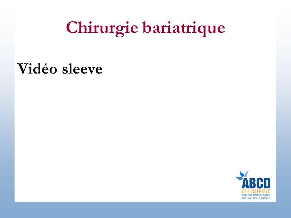 Chirurgie bariatrique Vidéo sleeve