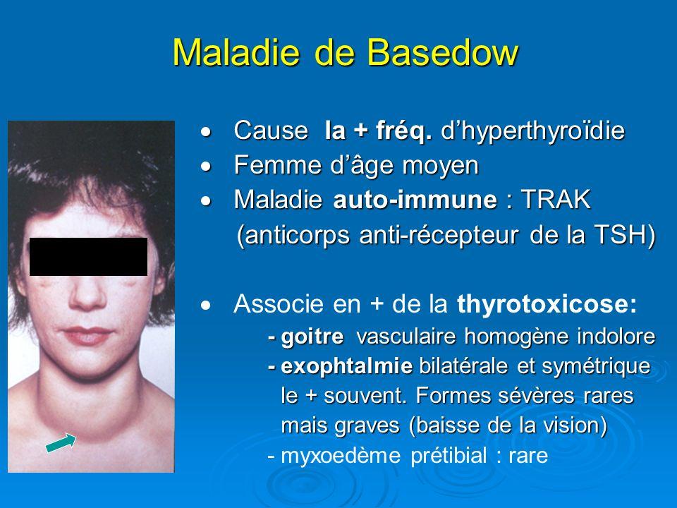 Maladie de Basedow Cause la + fréq.dhyperthyroïdie Cause la + fréq.