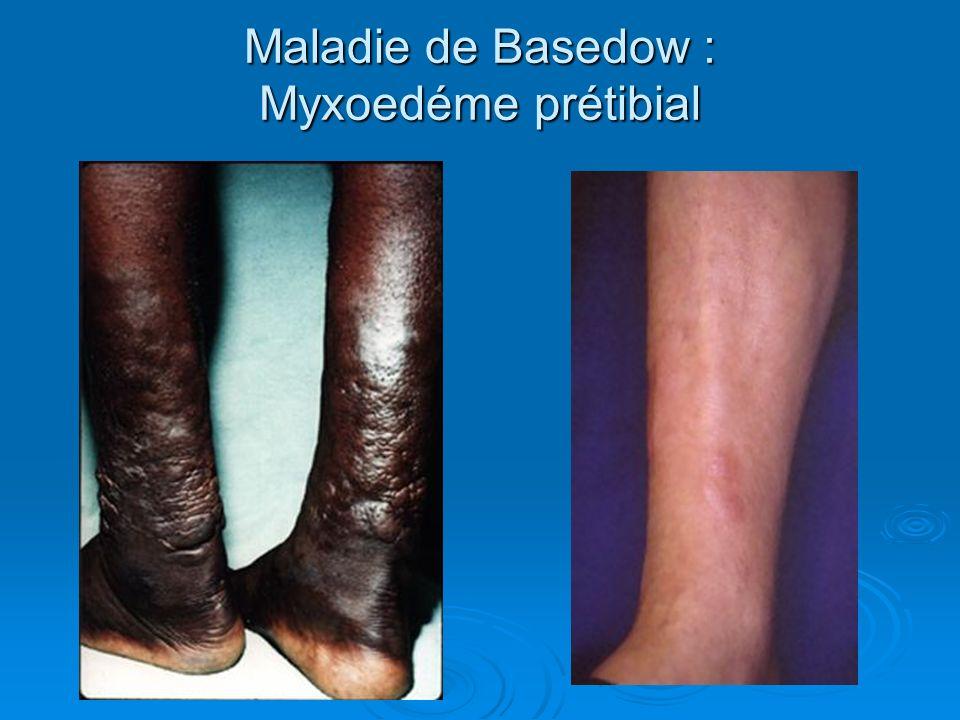 Maladie de Basedow : Myxoedéme prétibial