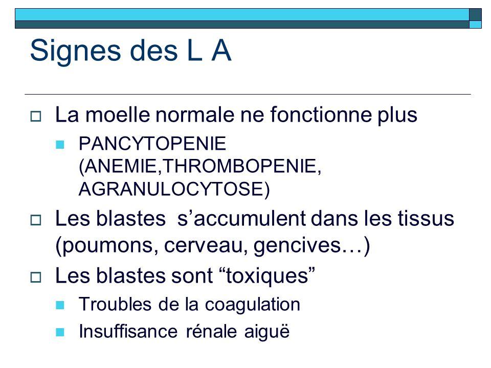 Signes des L A La moelle normale ne fonctionne plus PANCYTOPENIE (ANEMIE,THROMBOPENIE, AGRANULOCYTOSE) Les blastes saccumulent dans les tissus (poumons, cerveau, gencives…) Les blastes sont toxiques Troubles de la coagulation Insuffisance rénale aiguë