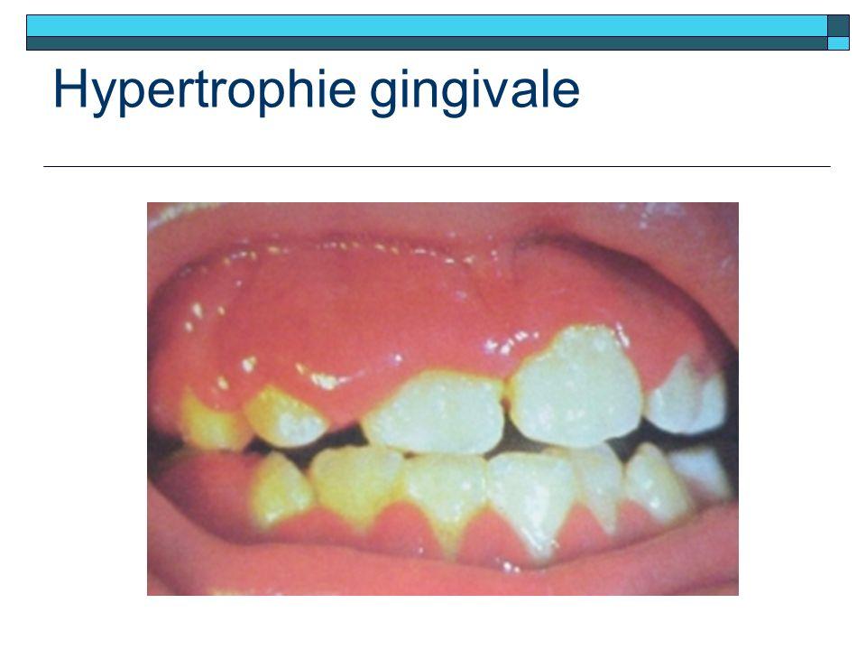 Hypertrophie gingivale