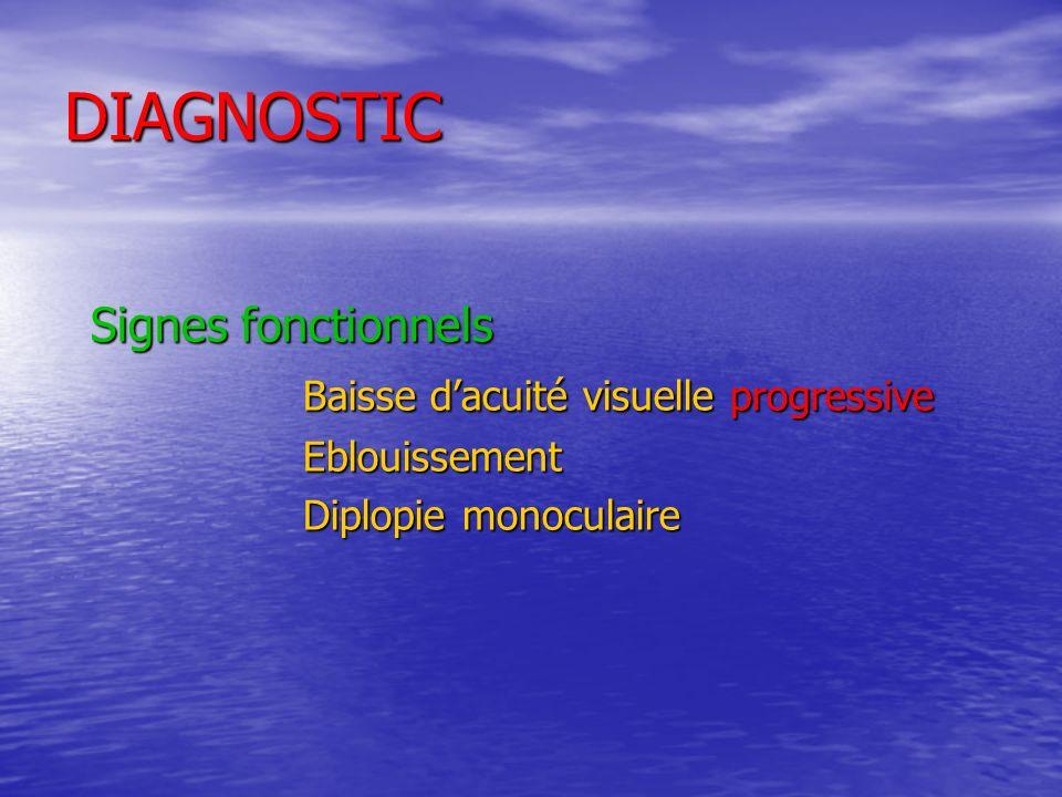 DIAGNOSTIC Signes dexamen Reflet blanchâtre (examen direct) Lampe à fente : C.