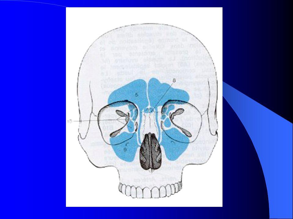 MALADIES INFECTIEUSES RHINO SINUSIENNES ETHMOIDITE AIGUË Forme extériorisée Propagation veineuse ou le long du nerf optique Cécité avec abolition du réflexe photomoteur et anesthésie cornéenne.