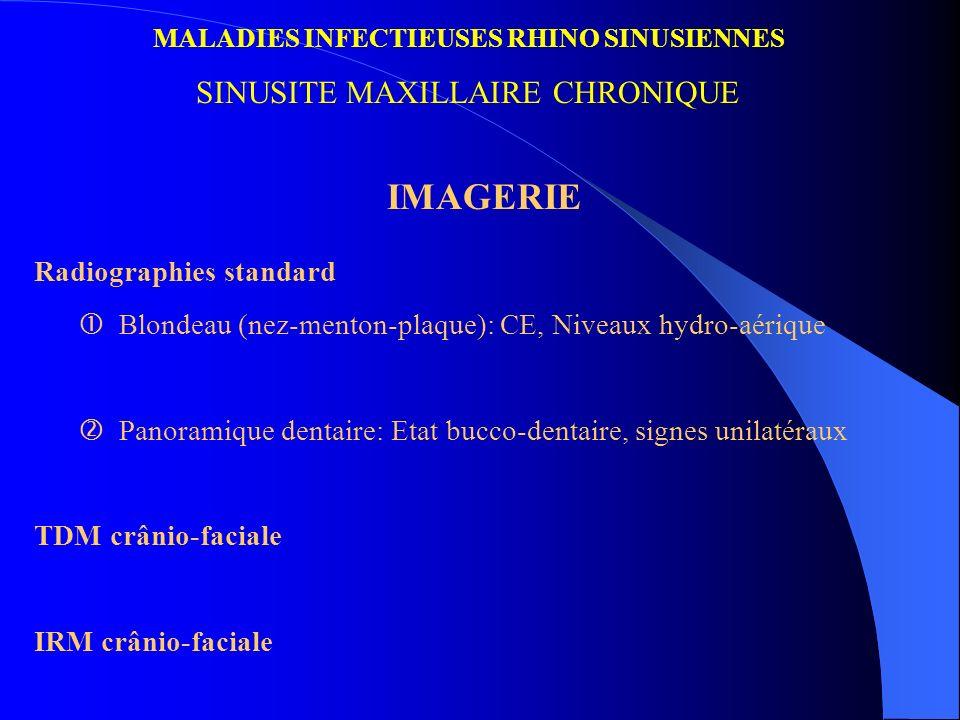 MALADIES INFECTIEUSES RHINO SINUSIENNES SINUSITE MAXILLAIRE CHRONIQUE IMAGERIE Radiographies standard Blondeau (nez-menton-plaque): CE, Niveaux hydro-