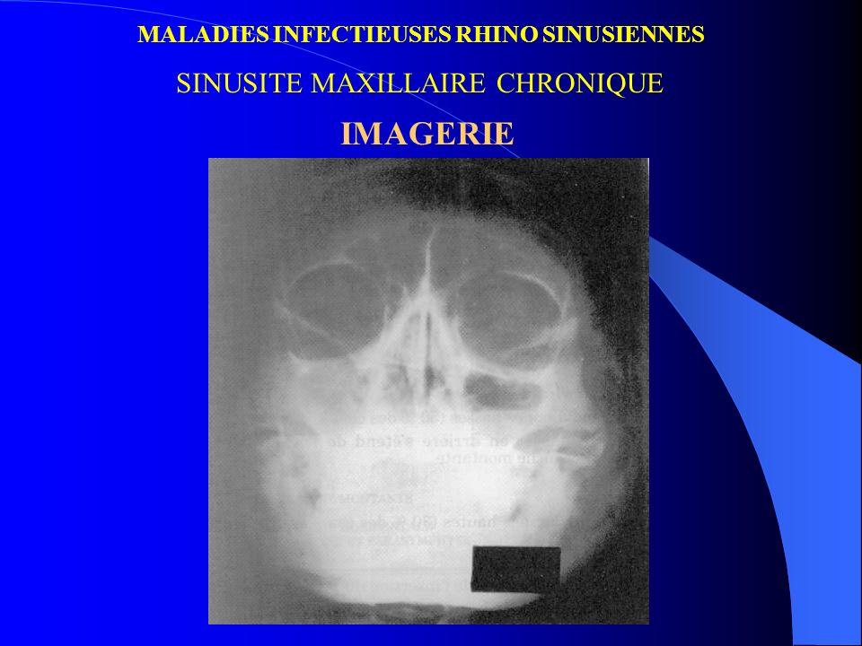 MALADIES INFECTIEUSES RHINO SINUSIENNES SINUSITE MAXILLAIRE CHRONIQUE IMAGERIE