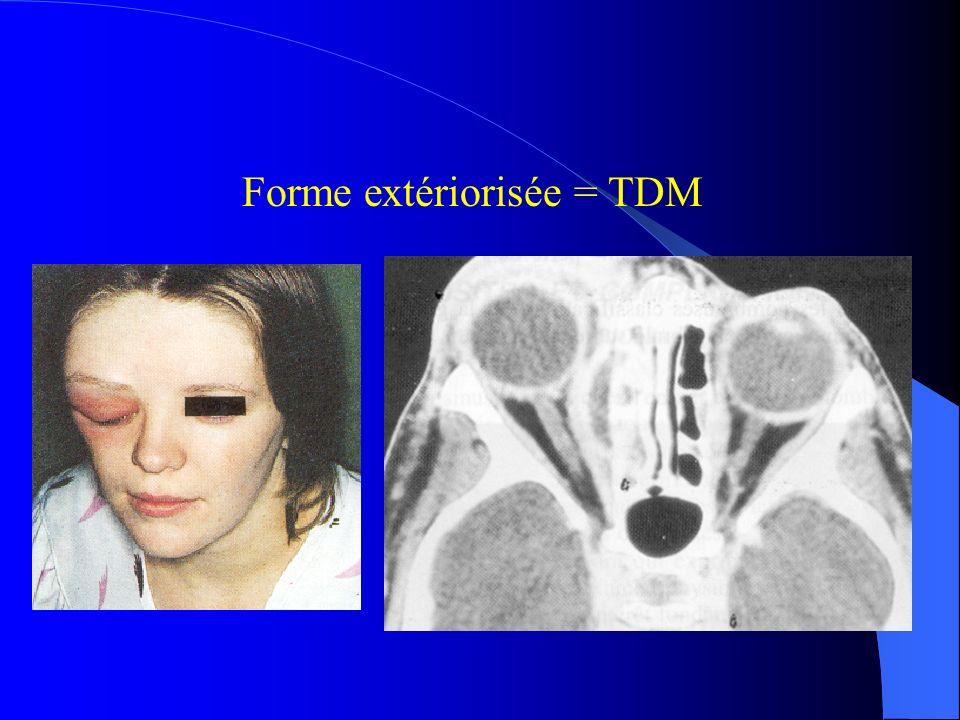 Forme extériorisée = TDM