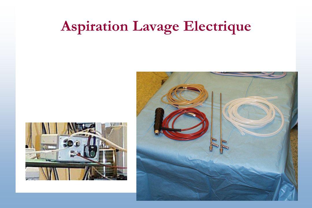 Aspiration Lavage Electrique