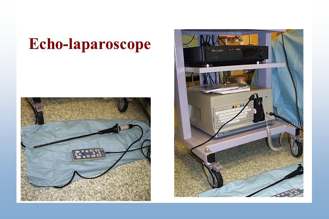 Echo-laparoscope