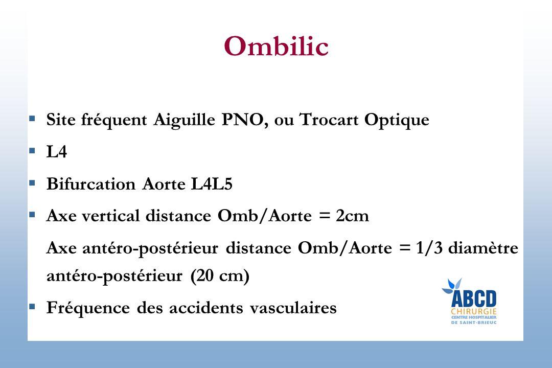 Ombilic Site fréquent Aiguille PNO, ou Trocart Optique L4 Bifurcation Aorte L4L5 Axe vertical distance Omb/Aorte = 2cm Axe antéro-postérieur distance Omb/Aorte = 1/3 diamètre antéro-postérieur (20 cm) Fréquence des accidents vasculaires