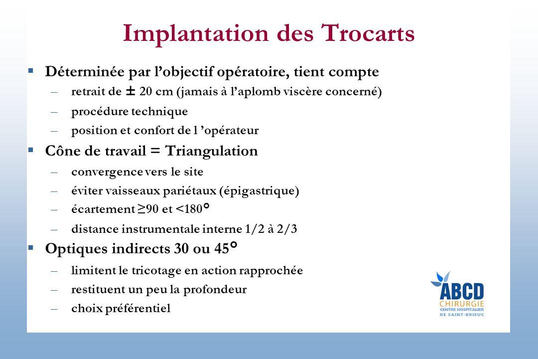 Implantation des Trocarts Déterminée par lobjectif opératoire, tient compte –retrait de ± 20 cm (jamais à laplomb viscère concerné) –procédure techniq