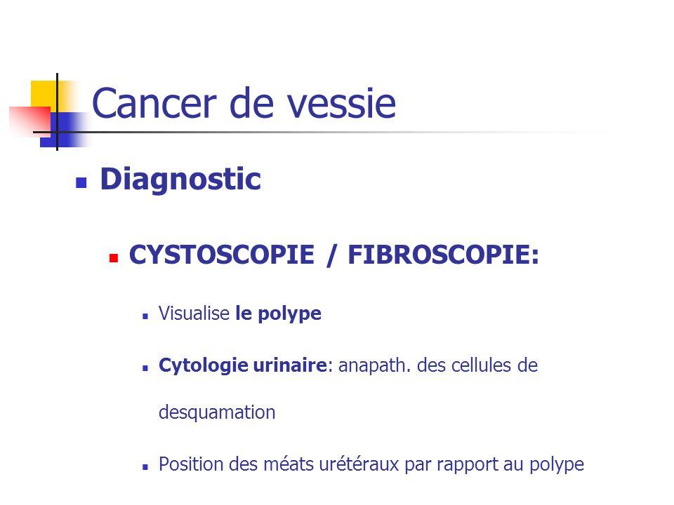 Diagnostic CYSTOSCOPIE / FIBROSCOPIE: Visualise le polype Cytologie urinaire: anapath. des cellules de desquamation Position des méats urétéraux par r