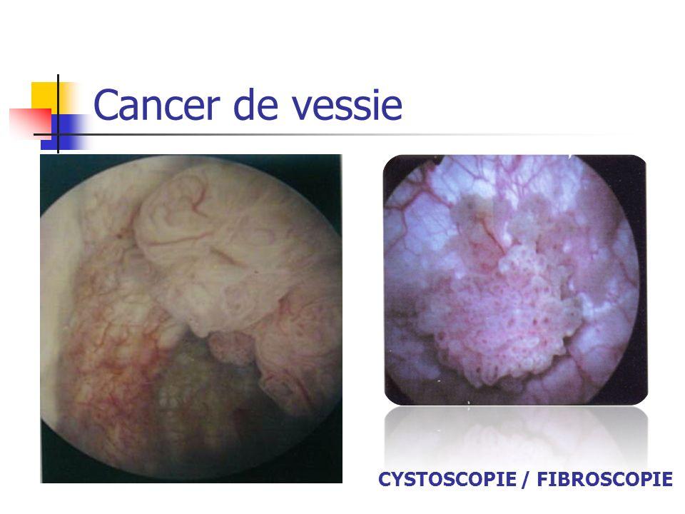 CYSTOSCOPIE / FIBROSCOPIE Cancer de vessie