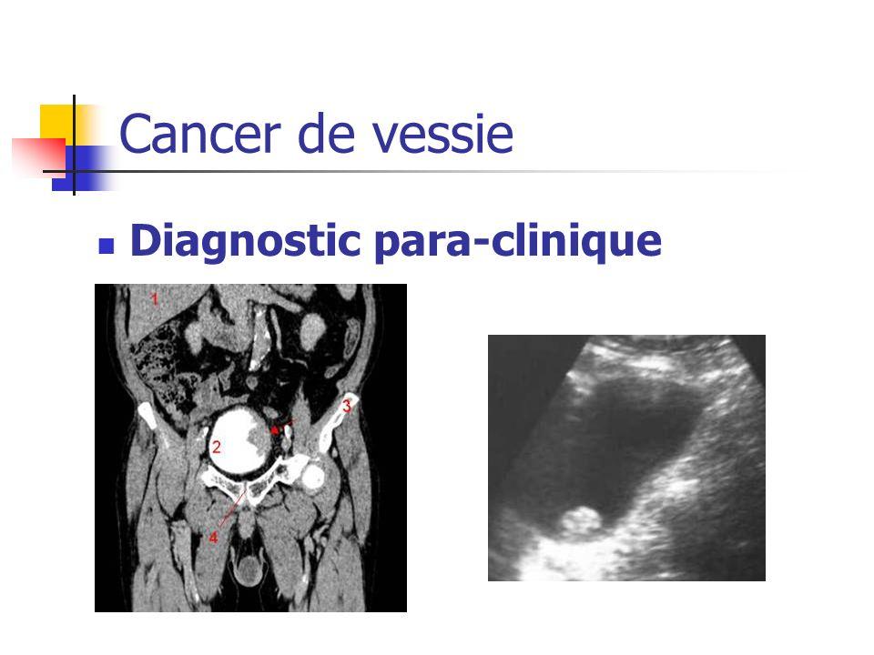 Diagnostic para-clinique Cancer de vessie