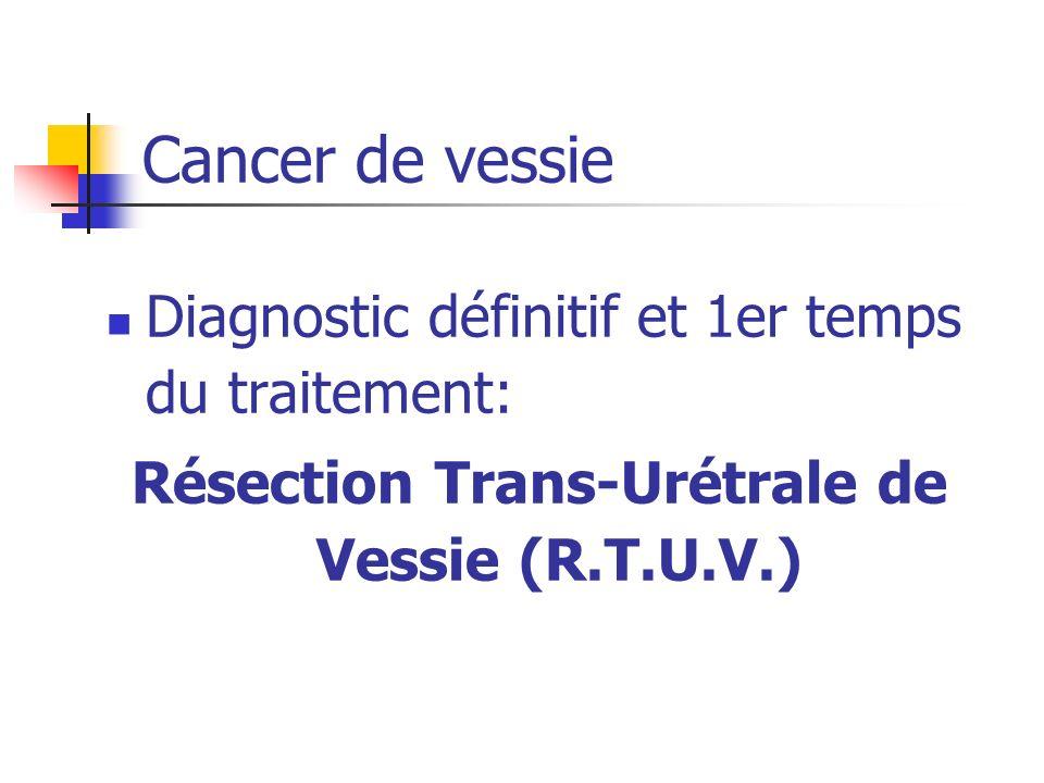Diagnostic définitif et 1er temps du traitement: Résection Trans-Urétrale de Vessie (R.T.U.V.) Cancer de vessie