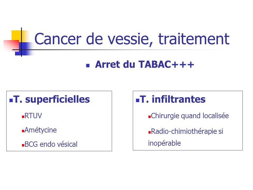 Arret du TABAC+++ Cancer de vessie, traitement T. superficielles RTUV Amétycine BCG endo vésical T. infiltrantes Chirurgie quand localisée Radio-chimi