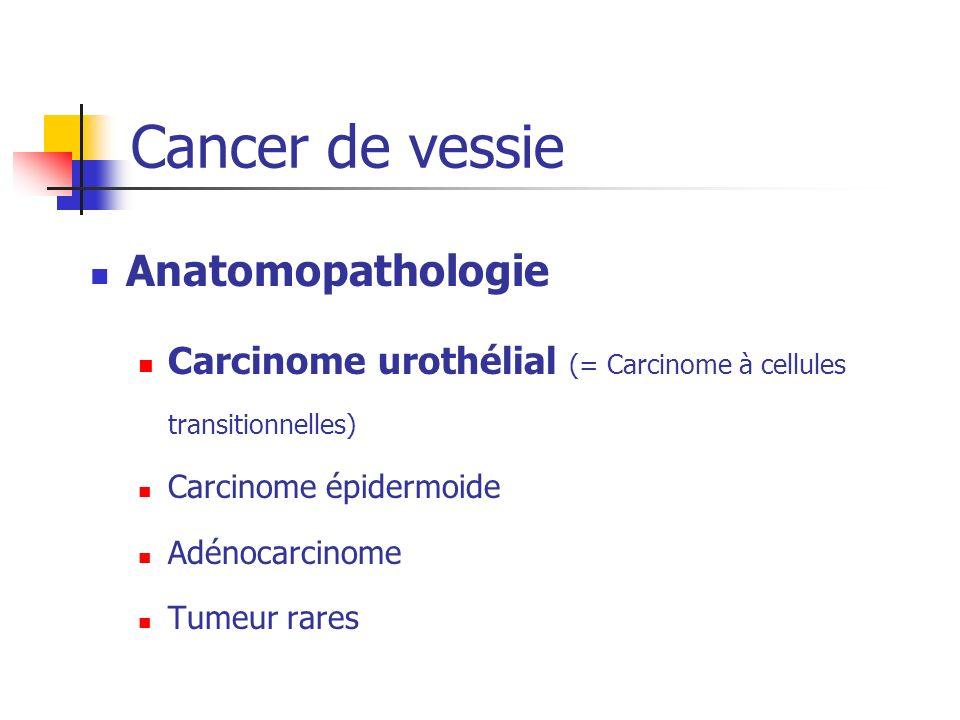 Anatomopathologie Carcinome urothélial (= Carcinome à cellules transitionnelles) Carcinome épidermoide Adénocarcinome Tumeur rares Cancer de vessie