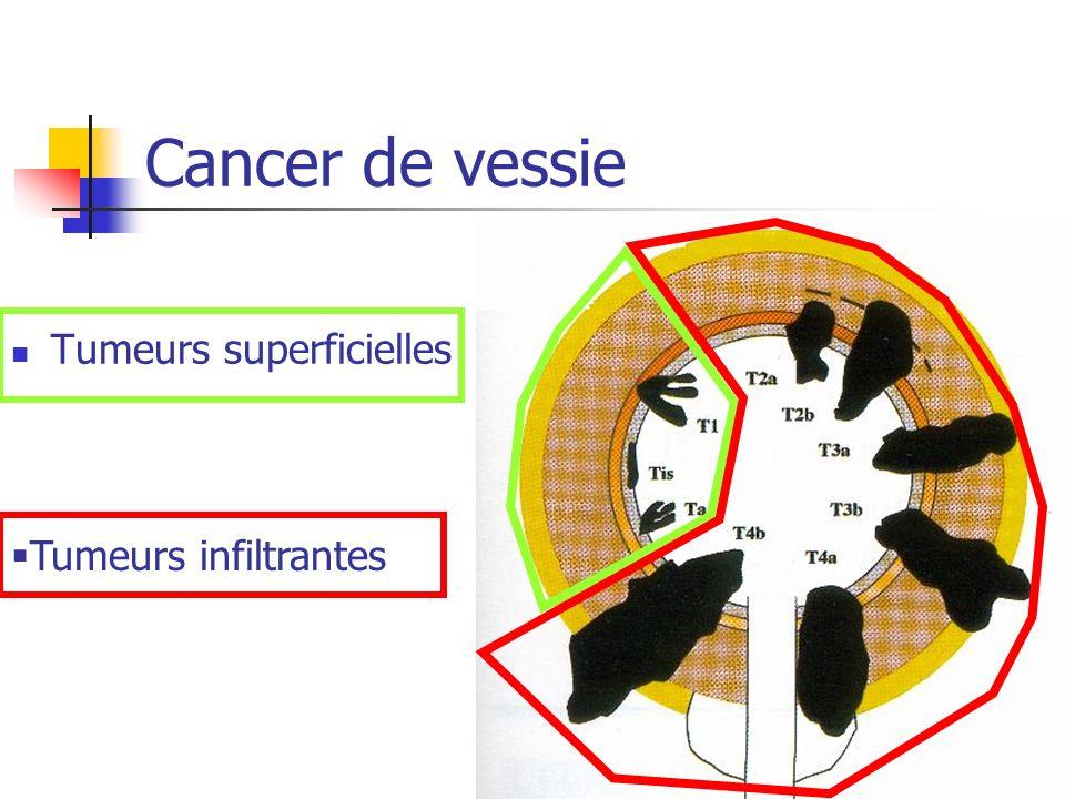 Résection trans-urétrale de vessie Type histologique (carcinome urothélial) Grade (faible, moyen, sévère) Taille du polype Infiltration (CIS, pTa, pT1, pT2) donne le pronostic définit les traitements Cancer de vessie