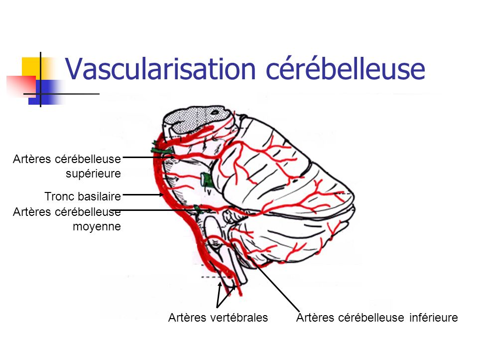 Vascularisation cérébelleuse Artères vertébrales Artères cérébelleuse moyenne Tronc basilaire Artères cérébelleuse supérieure Artères cérébelleuse inf