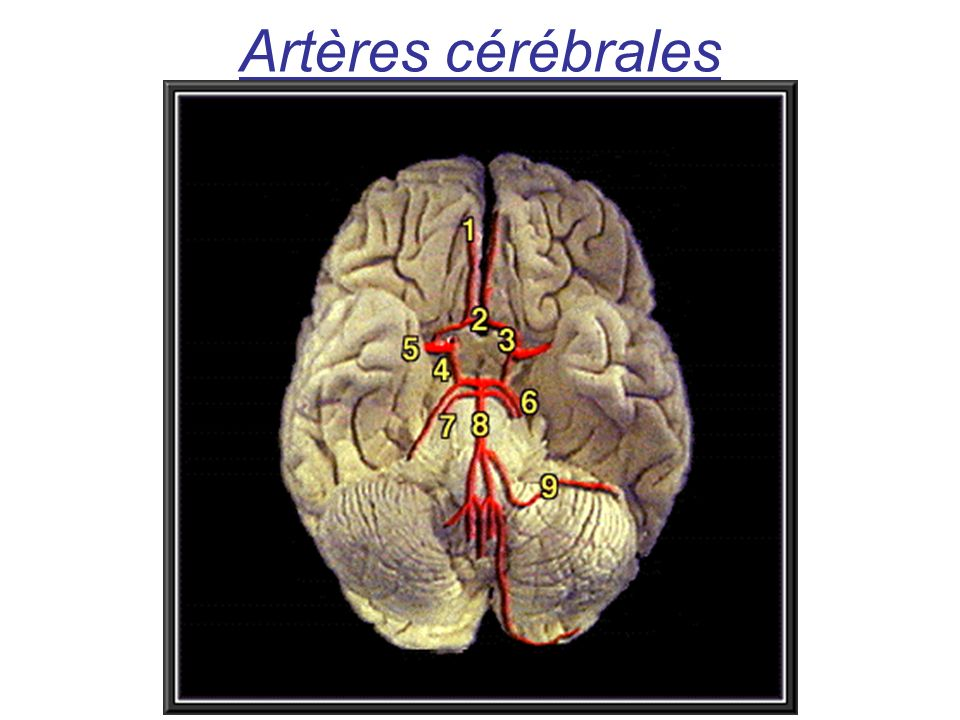 Artères cérébrales