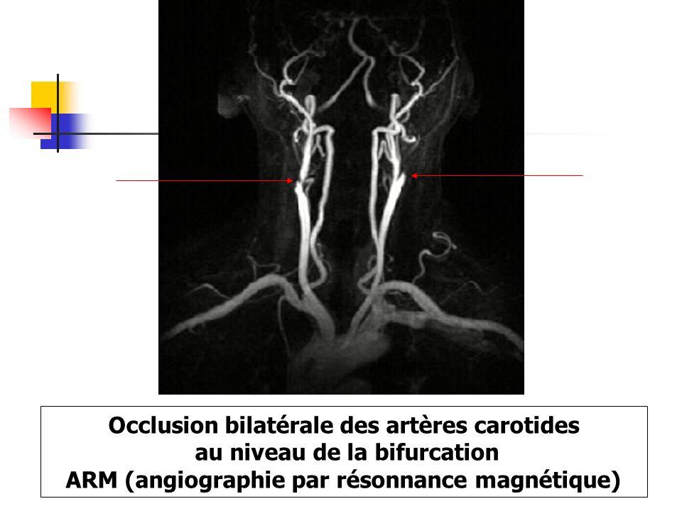 Occlusion bilatérale des artères carotides au niveau de la bifurcation ARM (angiographie par résonnance magnétique)