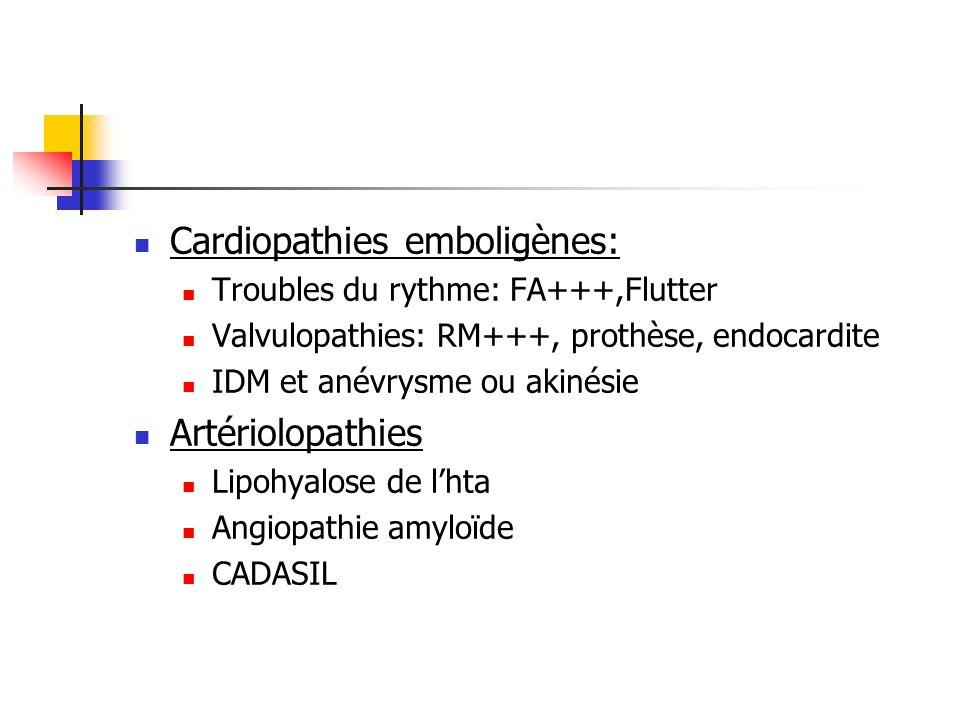 Cardiopathies emboligènes: Troubles du rythme: FA+++,Flutter Valvulopathies: RM+++, prothèse, endocardite IDM et anévrysme ou akinésie Artériolopathie