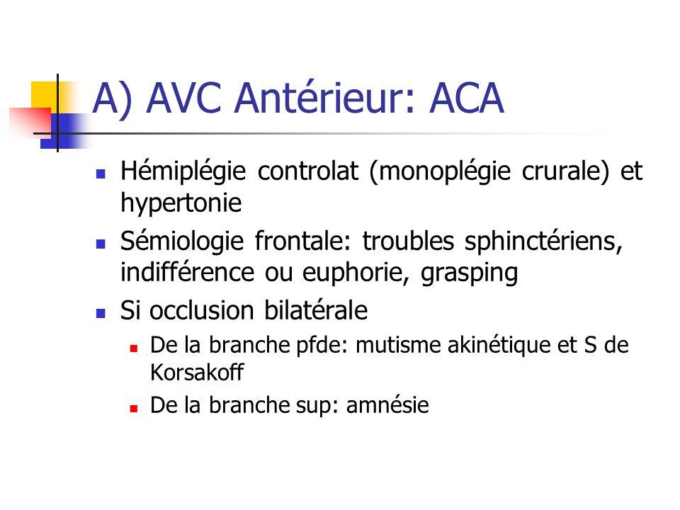 A) AVC Antérieur: ACA Hémiplégie controlat (monoplégie crurale) et hypertonie Sémiologie frontale: troubles sphinctériens, indifférence ou euphorie, g