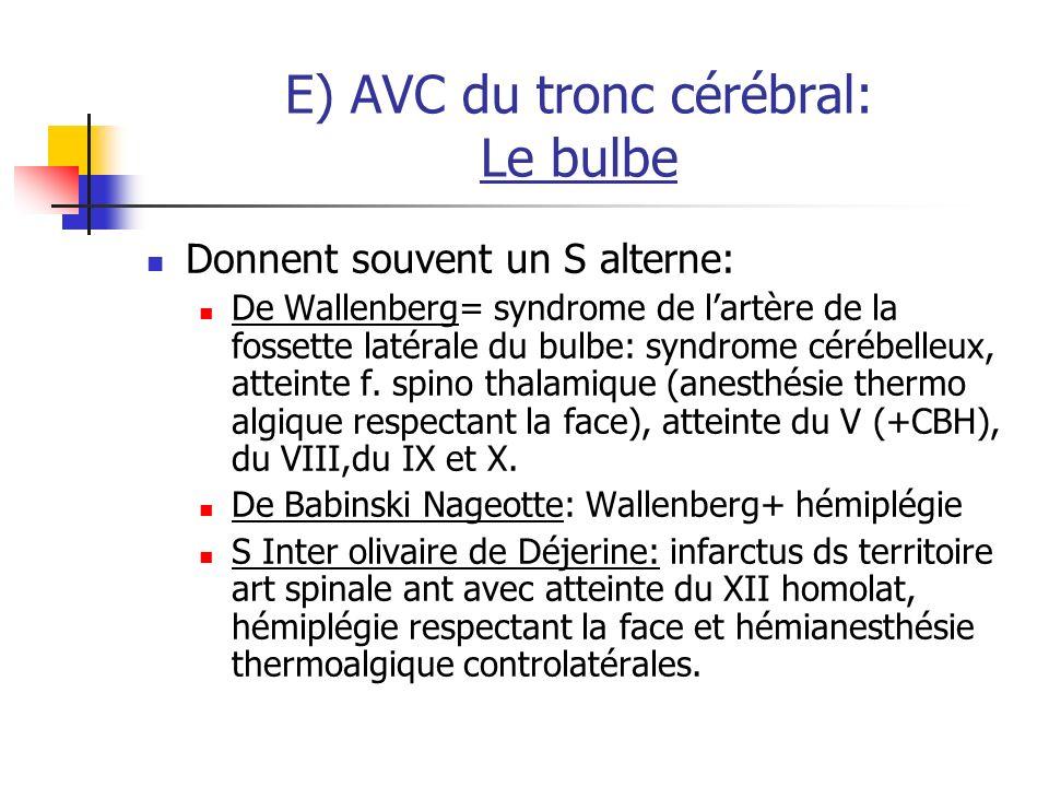 E) AVC du tronc cérébral: Le bulbe Donnent souvent un S alterne: De Wallenberg= syndrome de lartère de la fossette latérale du bulbe: syndrome cérébelleux, atteinte f.