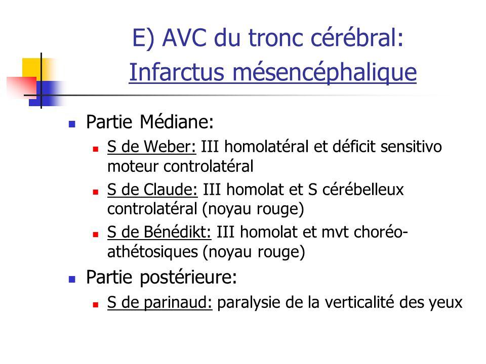 E) AVC du tronc cérébral: Infarctus mésencéphalique Partie Médiane: S de Weber: III homolatéral et déficit sensitivo moteur controlatéral S de Claude: