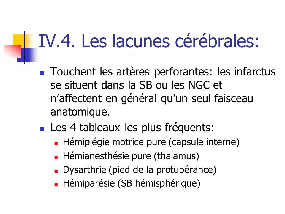 IV.4. Les lacunes cérébrales: Touchent les artères perforantes: les infarctus se situent dans la SB ou les NGC et naffectent en général quun seul fais