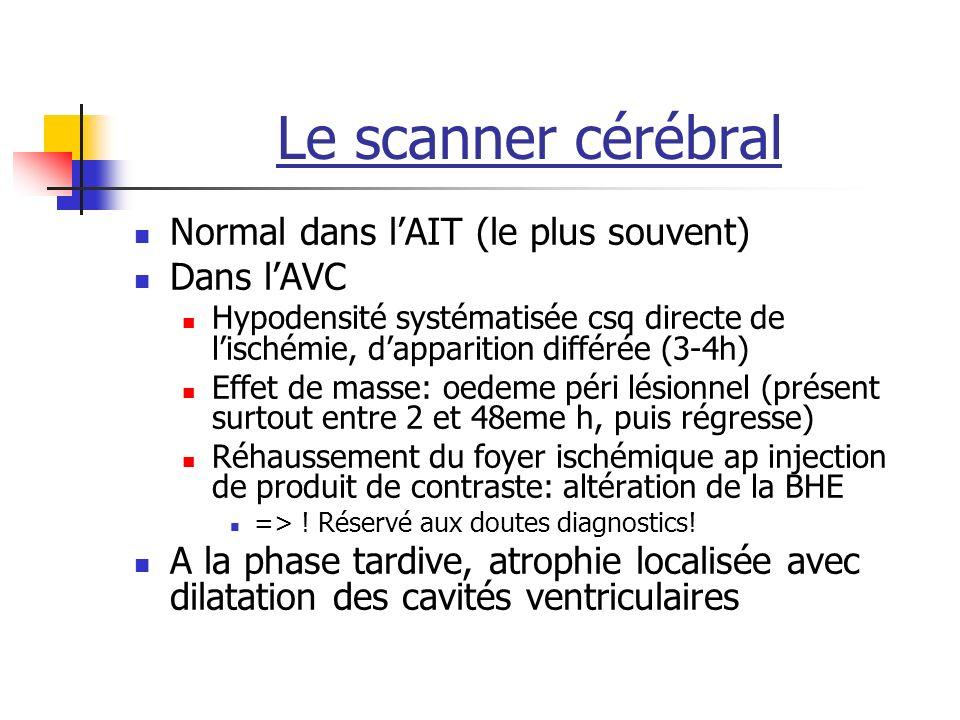 Le scanner cérébral Normal dans lAIT (le plus souvent) Dans lAVC Hypodensité systématisée csq directe de lischémie, dapparition différée (3-4h) Effet de masse: oedeme péri lésionnel (présent surtout entre 2 et 48eme h, puis régresse) Réhaussement du foyer ischémique ap injection de produit de contraste: altération de la BHE => .