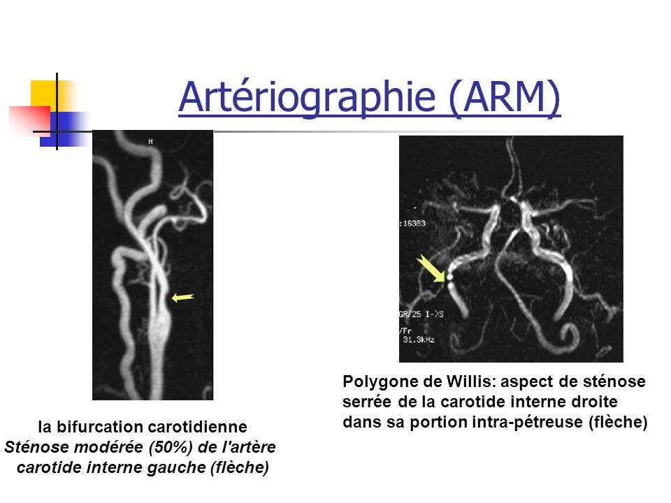 Artériographie (ARM) la bifurcation carotidienne Sténose modérée (50%) de l artère carotide interne gauche (flèche) Polygone de Willis: aspect de sténose serrée de la carotide interne droite dans sa portion intra-pétreuse (flèche)