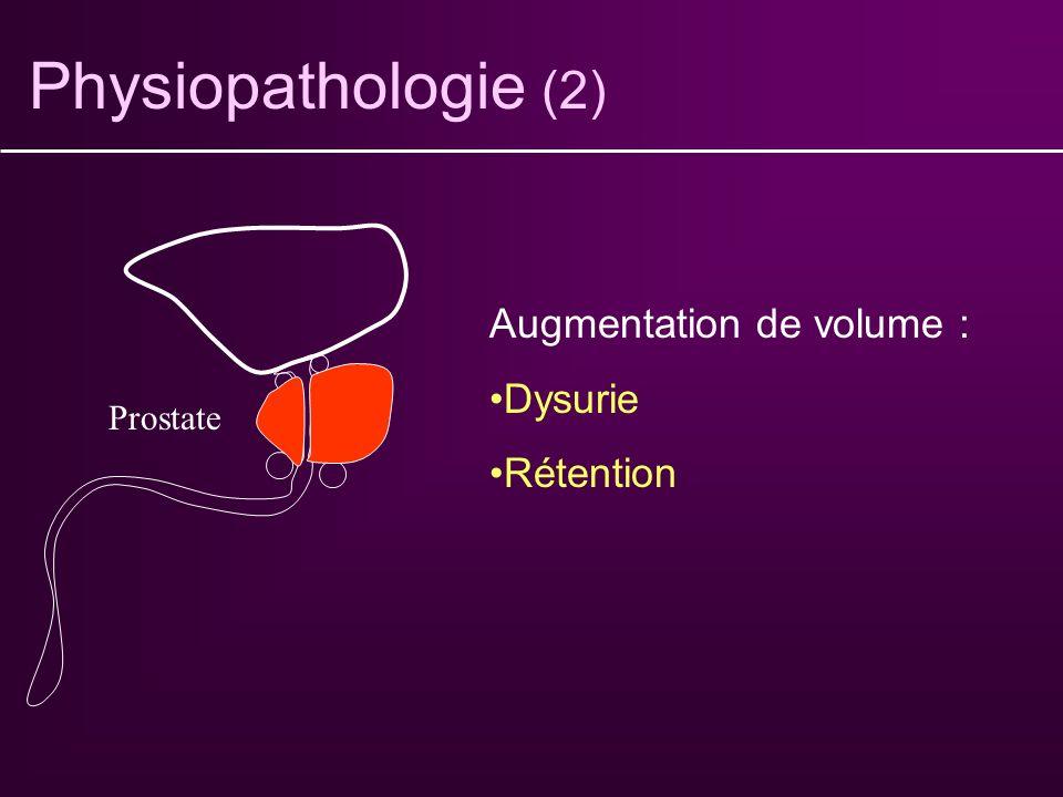 Physiopathologie (1) Vessie Lésion intra-vésicale : pollakiurie (irritation) Diminution de taille : pollakiurie Diminution de la contractilité : -Dysu