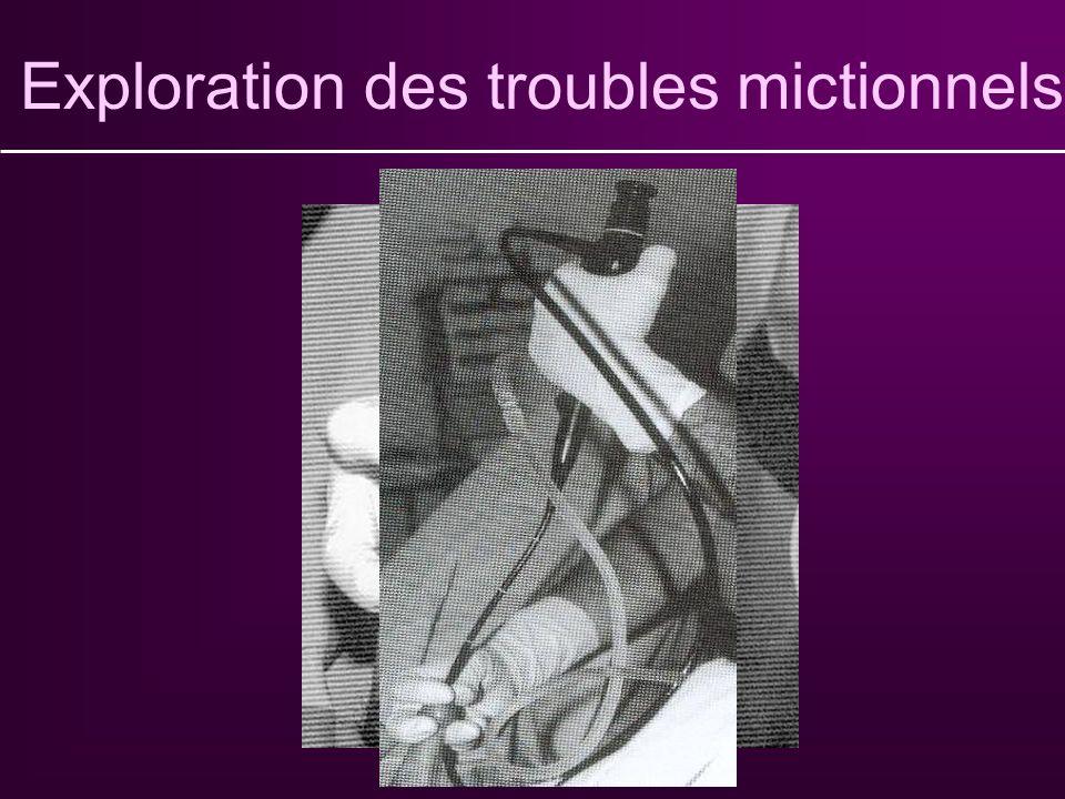 Exploration des troubles mictionnels