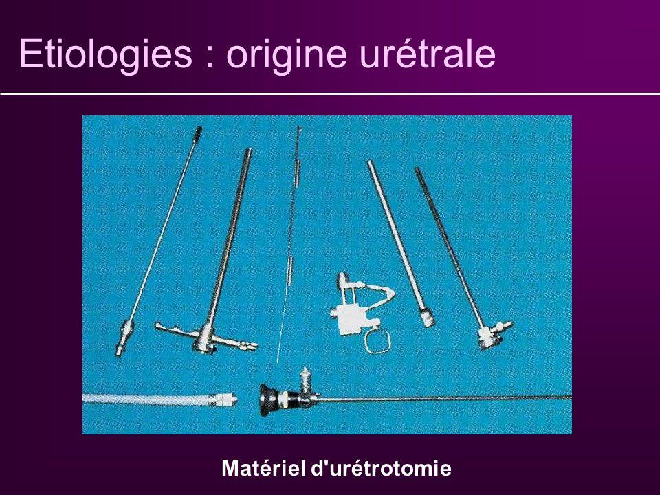 Etiologies : origine urétrale Secondaire à : Infections à répétition Iatrogénicité : sondage, geste endo-urologique traumatismes Dysurie, rétention Di