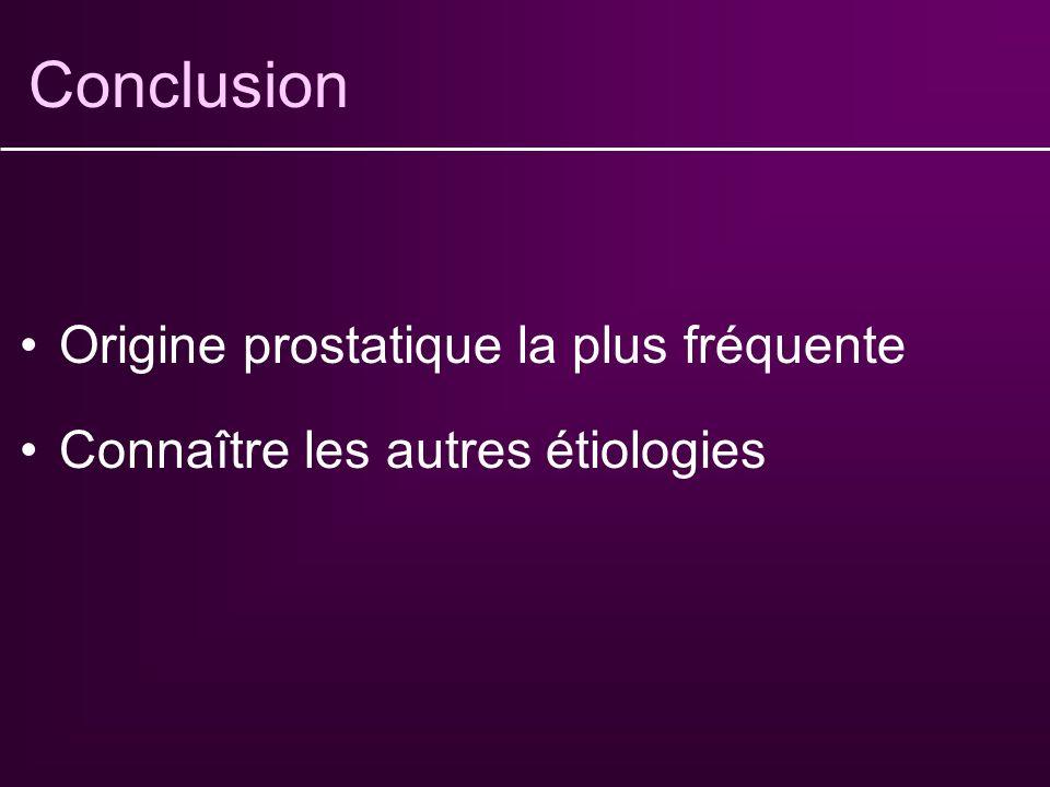 Etiologies : origine vésicale Rare Défaut de contraction du detrusor+++ : Vessie