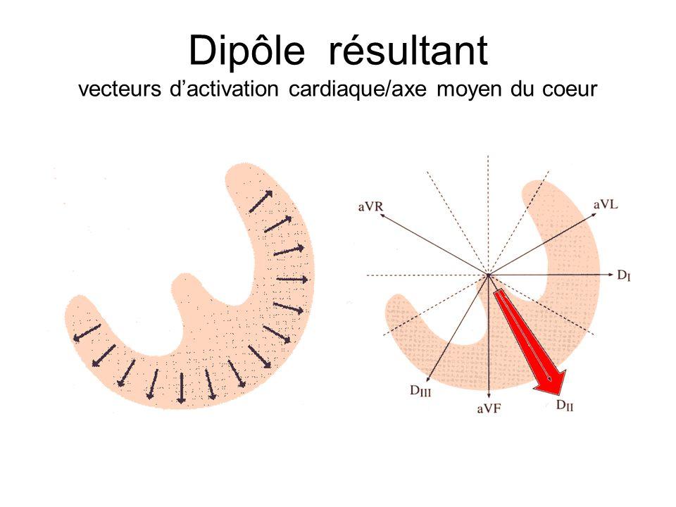 Dipôle résultant vecteurs dactivation cardiaque/axe moyen du coeur