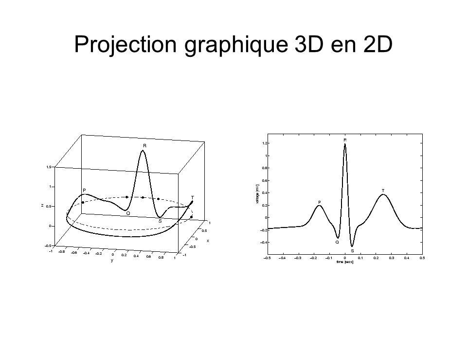 Projection graphique 3D en 2D