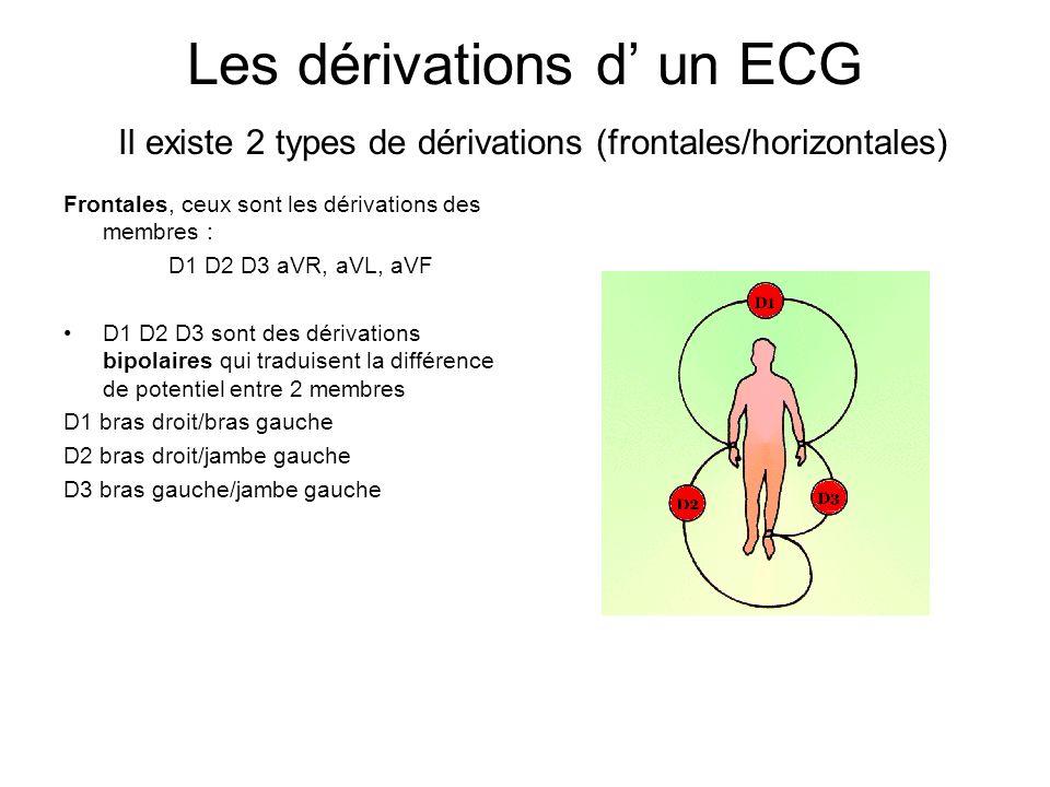 Les dérivations d un ECG Il existe 2 types de dérivations (frontales/horizontales) Frontales, ceux sont les dérivations des membres : D1 D2 D3 aVR, aV
