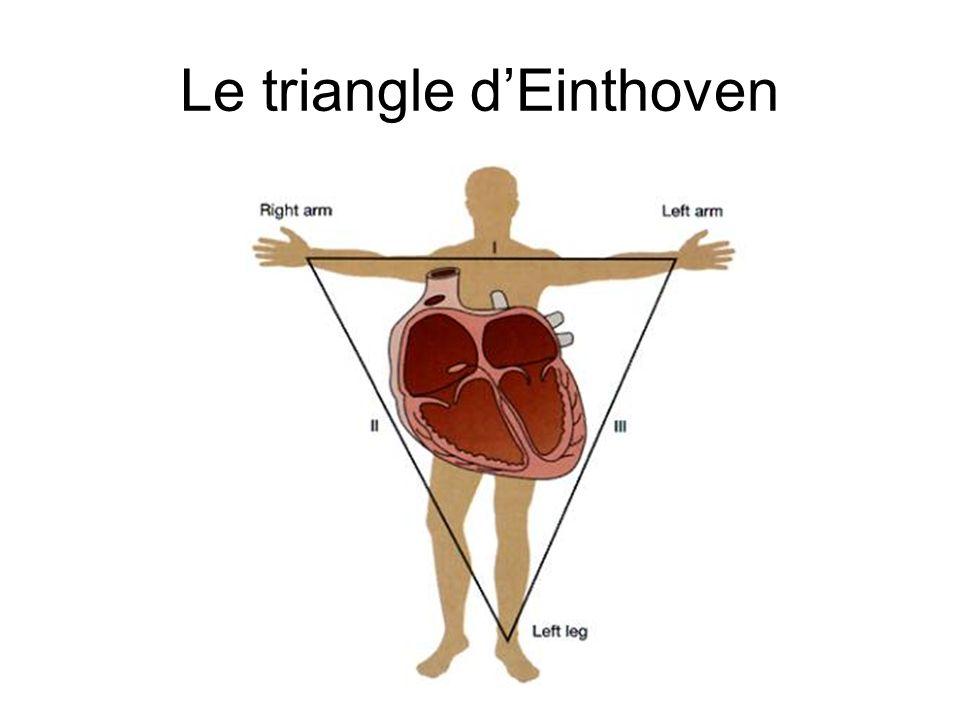 Le triangle dEinthoven